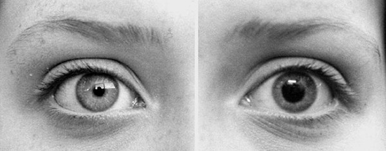before-and-after-dilation