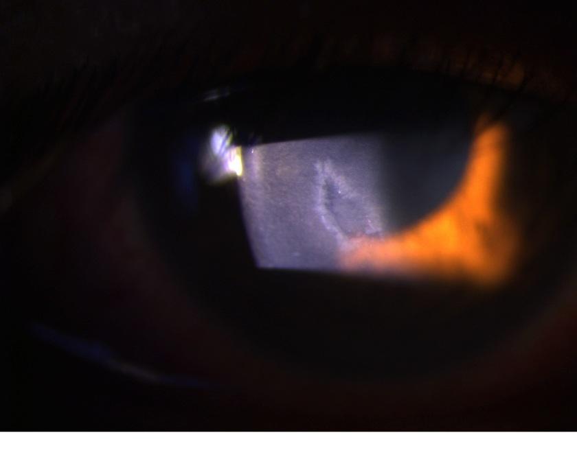 cornea-abrasion-1