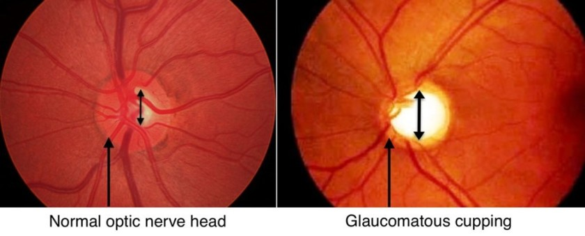 glaucoma-nerve-changes