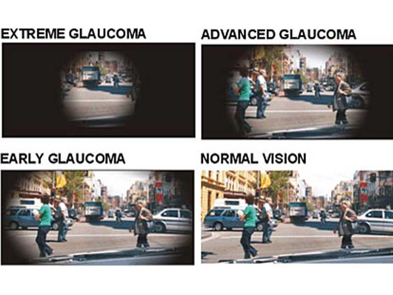 glaucomavision
