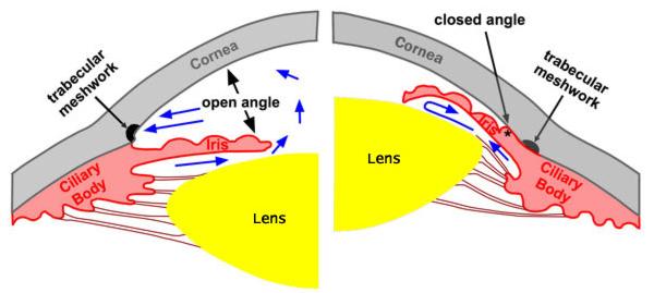 angle closure